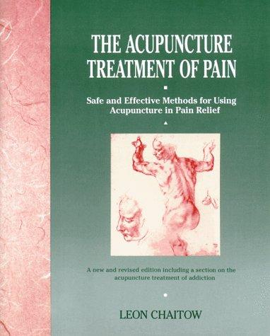 Download The acupuncture treatment of pain